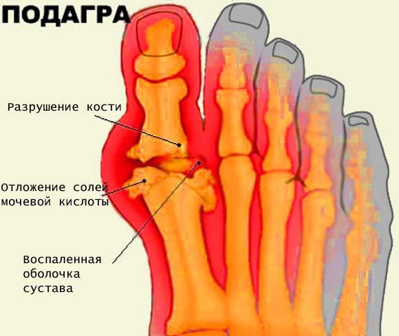 Лекарство от боли в горле при орви